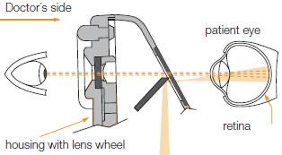 Refleksy od rogówki i od tęczówki eliminowane są przez separację wiązek świetlnych